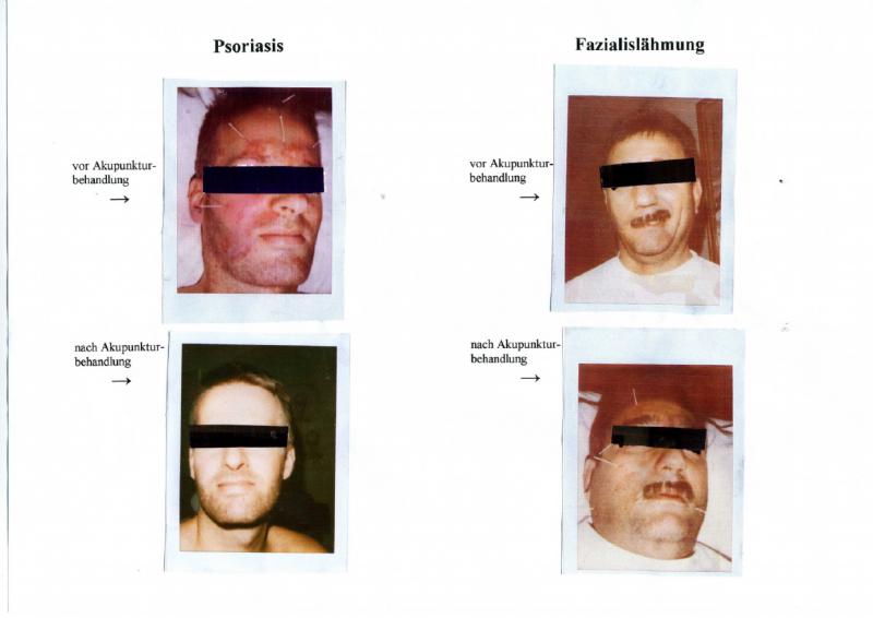 Psoriasis & Fazialislähmung