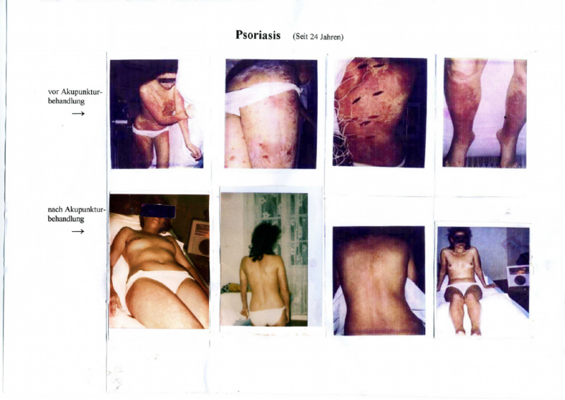 Psoriasis seit 24 Jahren