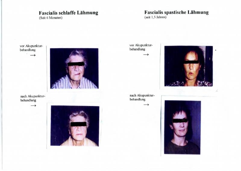 Fascialis schlaffe Lähmung / Fascialis spastische Lähmung